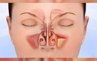 Sinüzit Ameliyatı